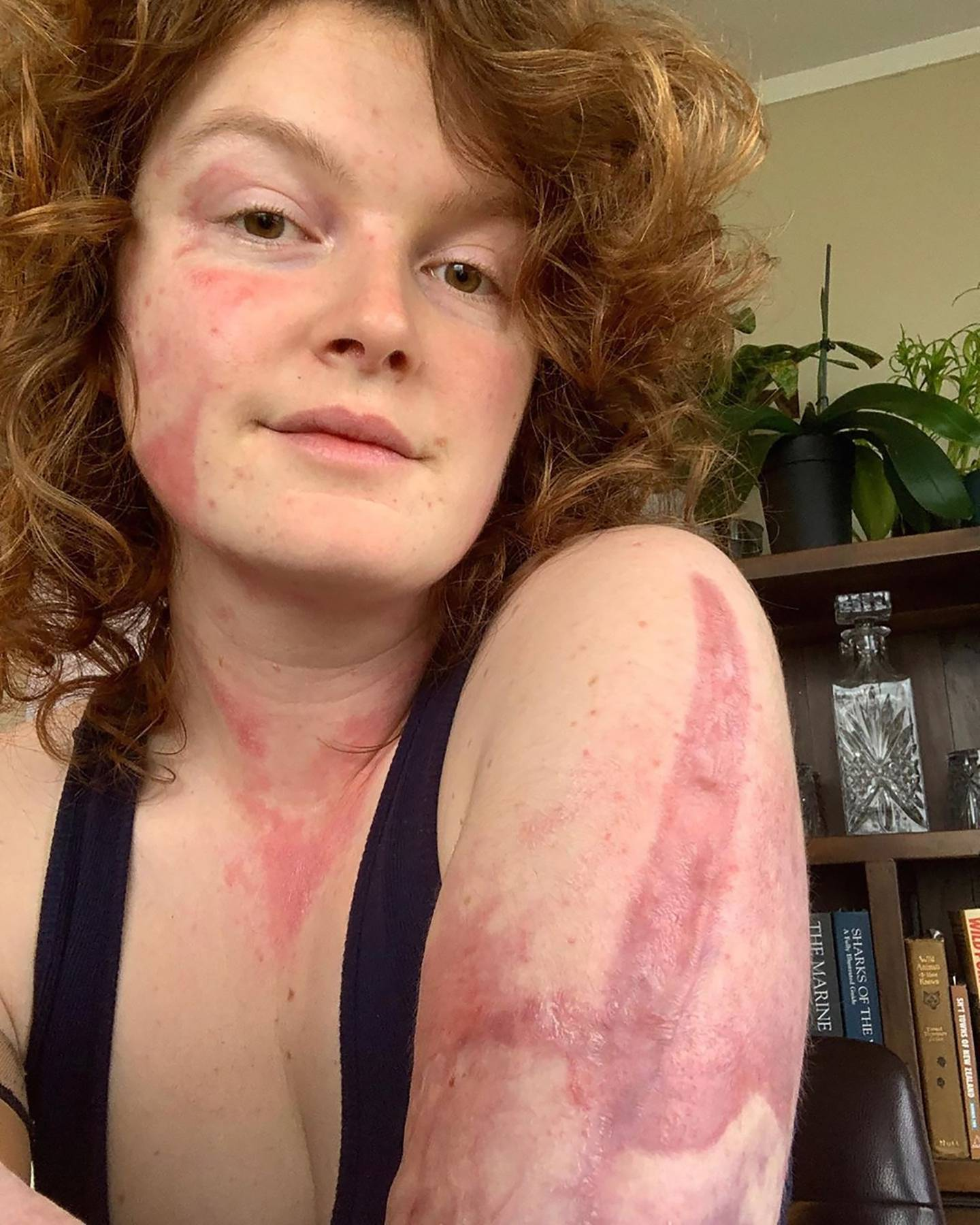 Kelsey Waghorn, survivor from the Whakaari White Island volcanic eruption from 10 December 2019,...