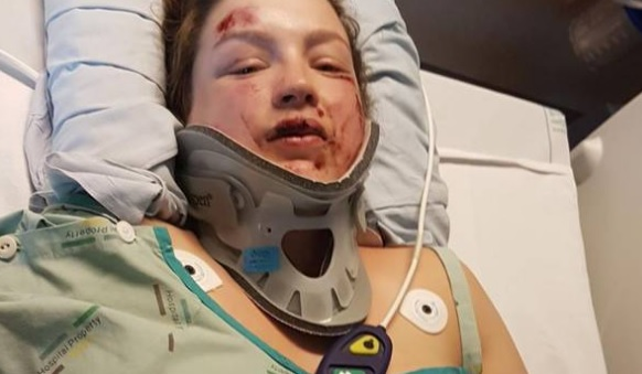 Amy Gianfrancesco fractured her C7 vertebrae, at the base of her neck. Photos: NZ Herald
