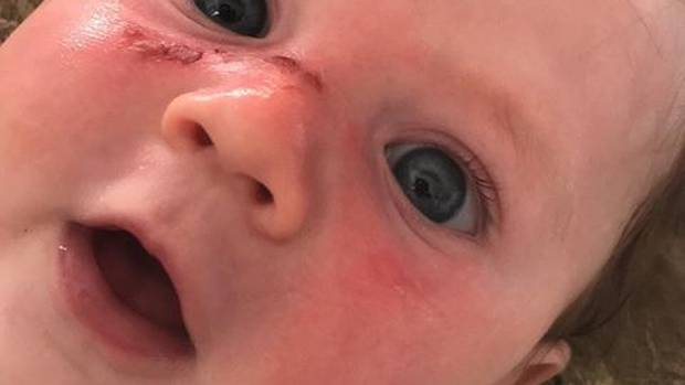 Noah - four months old - suffers horrific blister burns after Cancer Society 50 SPF sunblock...