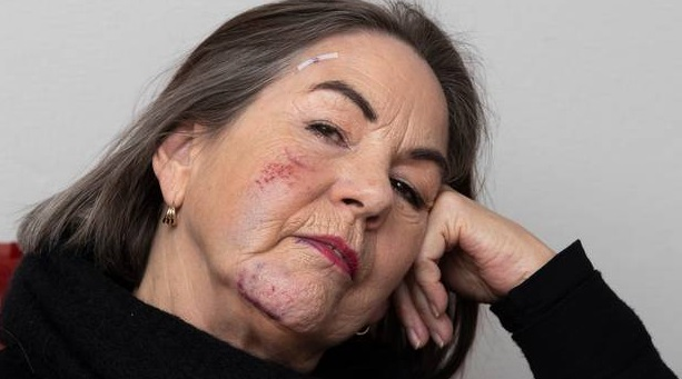 Debra Christensen was hit and knocked out by a Lime scooter as she was getting off a bus near...