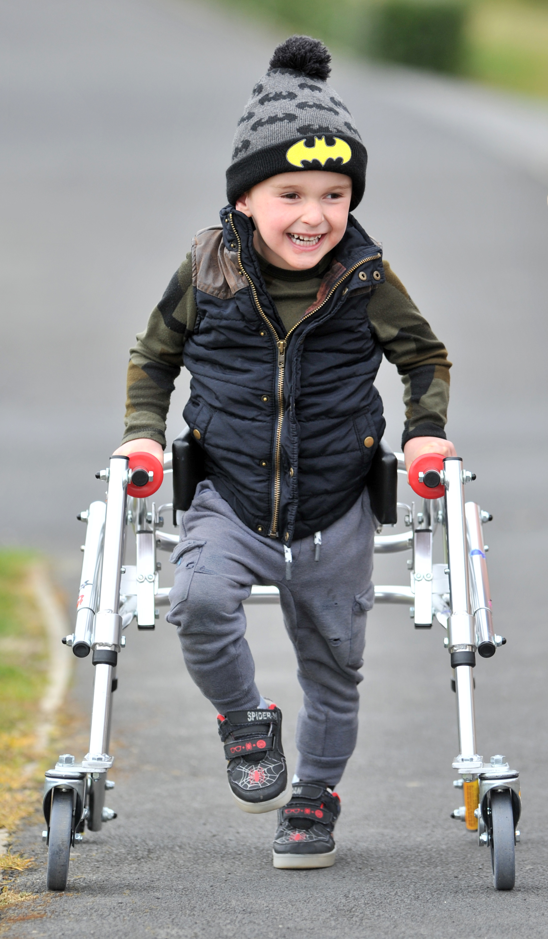 Harry Finch is upright and walking with a frame, just three months after major spine surgery in...