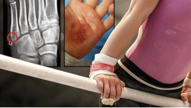 Parents' previous concerns included an athlete being told to continue with a serious foot injury...