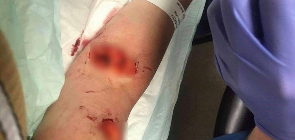 Isabel Bisset in hospital after the stabbing. Photo: Supplied