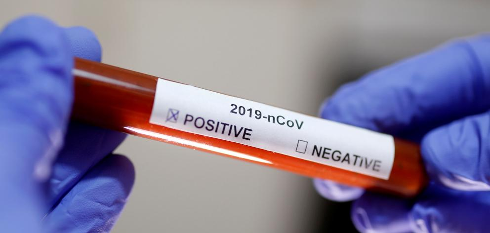 Test tube with coronavirus name label is seen in this illustration picture. Photo: Reuters