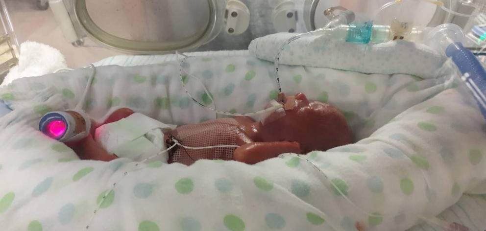 His twin brother Riley lost his fight for life at 16 days old. Photo / Supplied