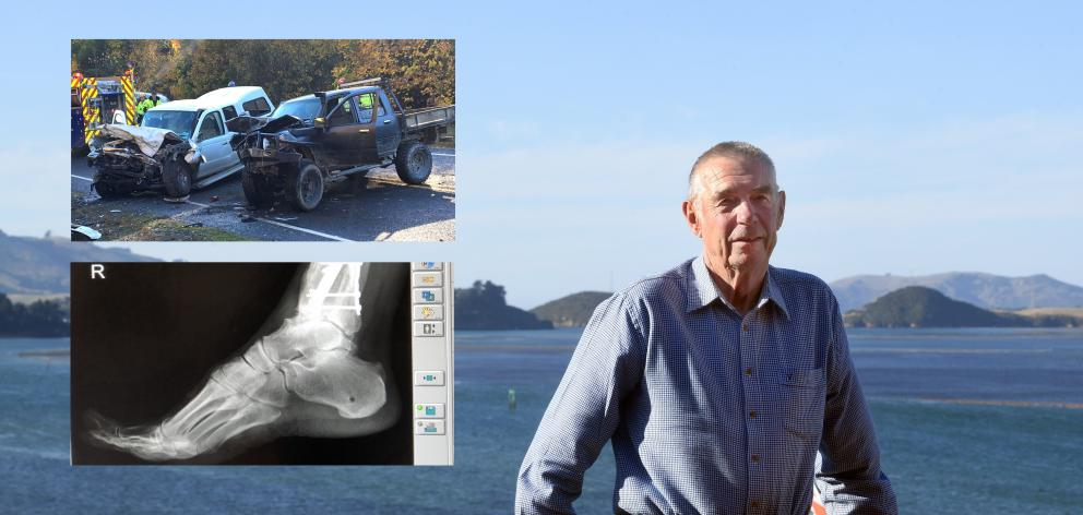 Dunedin man Walter Dalziel was left with 21 broken bones and a range of other injuries after a...