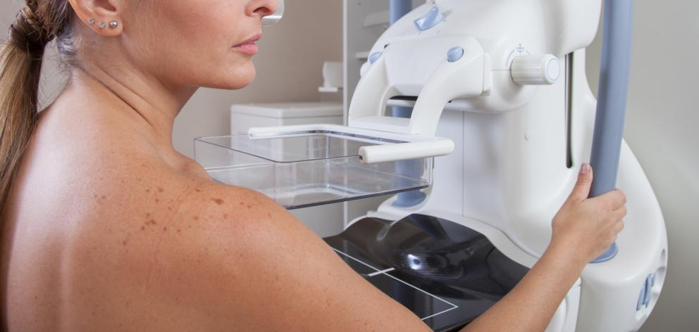 Mammogram appointment reminders were mistakingly sent to Auckland women. Photo: Getty