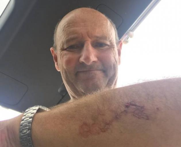 Takapuna resident Nick Minogue, 60, was attacked by what he believes was a Great White shark off...