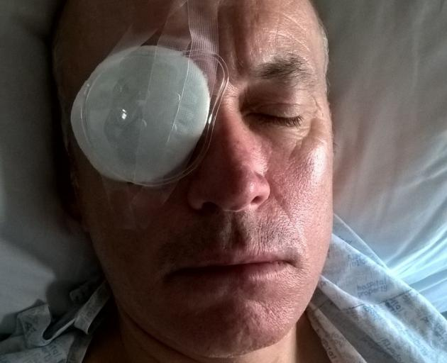 Dunedin man Wayne Boss' eye was seriously injured during the fireworks display in the Octagon...