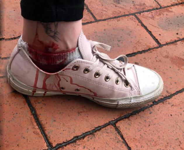 Jo Wilson's bloodied ankle after a Lime scooter mishap. Photo: Supplied