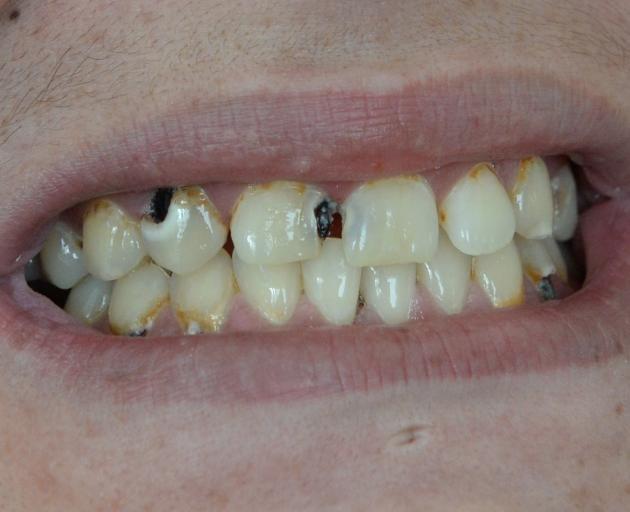 DIY dentistry has a long history in New Zealand. PHOTO: LINDA ROBERTSON
