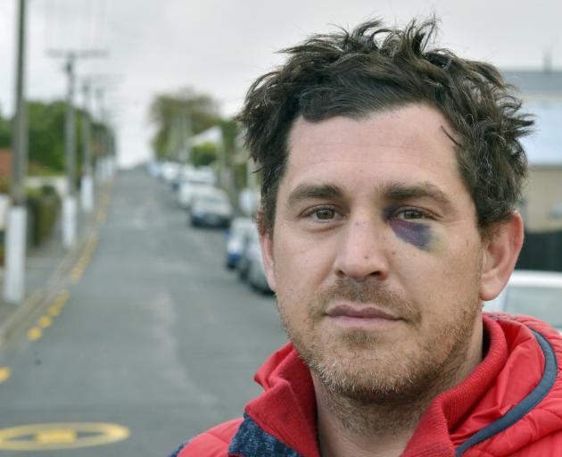 After moving back to Dunedin last year, Jared never thought he would be the victim of a violent assault in the city. Photo: Gerard O'Brien