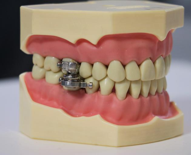 The dental device which stops users eating solid food by locking their mouths almost shut. PHOTO:...