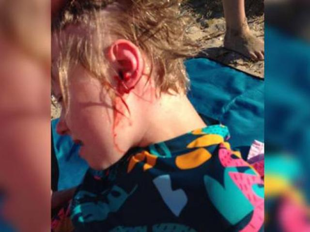 Nine-year-old Christiana Holt was taken to hospital after a dog attacked her on Eastern Beach on...