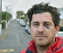 After moving back to Dunedin last year, Jared never thought he would be the victim of a violent...