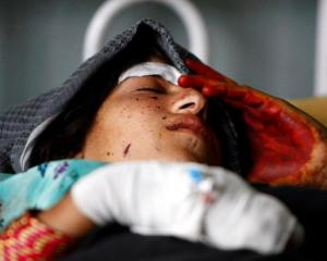A wounded woman rests at a hospital after NATO air strikes in Laghman province, Afghanistan....