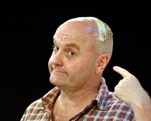 Actor Phil Vaughan shows off his injury at the Fortune Theatre yesterday. Photo by Peter McIntosh.