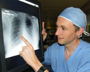 Dunedin Hospital ICU consultant Dr Matthew Bailey examines an X-ray of the air-starved lungs of a...