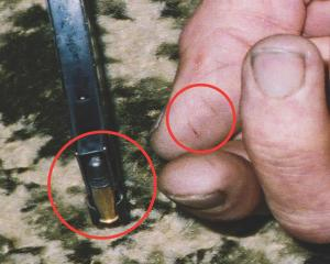 Lines on thumb and edge of magazine (circled). Photo from NZ Police.