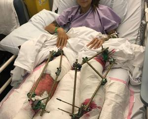 A kiwi woman's legs have been crushed after a road accident in Australia. Photo: Facebook