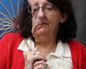 Christine Brown was born with neurofibromatosis and had multiple tumours grow on her face. Photo ...