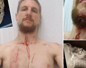 Liam Thompson, 27, went over the handlebars of a Lime scooter. Photos : Supplied