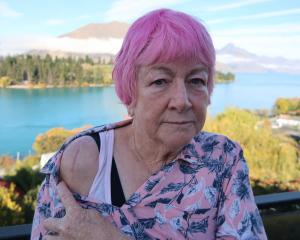 "Mary quite contrary: ""Pissed-off"" Mary Keith with her post-surgery scars. Photo: Mountain Scene"