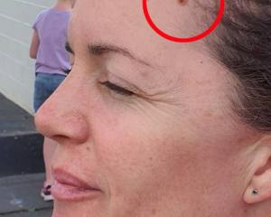 Philippa Matheson had a spot on her head which turned out to be cancerous. Photo: Supplied