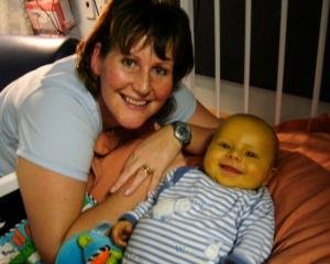 When he was young, Hamish Crossan was unnaturally yellow. But his mother Tracy Crossan gave him...