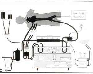 The heart lung bypass machine. Photo: The Auckland Weekly
