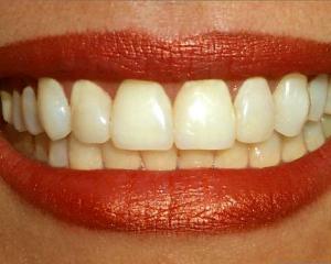 i-teeth.jpg