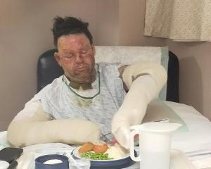 Constable Kris Dale, of Te Anau, was badly burned after an accident involving a gas bottle last...