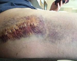 Philippa Hyndman's thigh was bruised and she had to undergo surgery following a hit-and-run in...