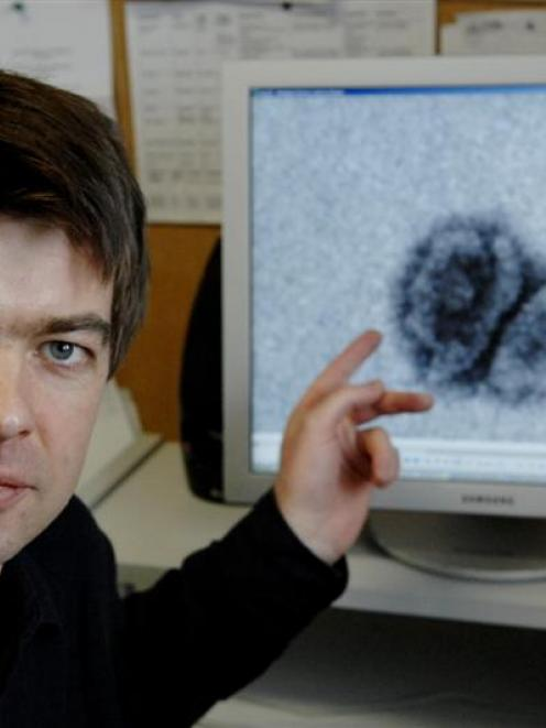 University of Otago scientist Dr Alexander McLellan points to images -- magnified a million-fold ...