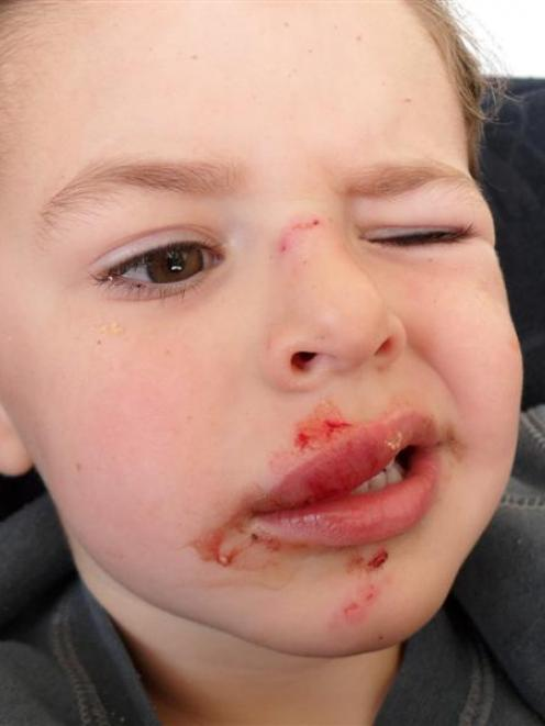 "A Police dog attack left Tyler Hatton with two minor puncture wounds on his lip and a ""minor gash..."