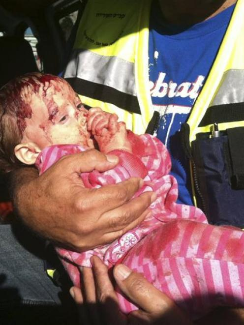 An Israeli baby is held by a security officer in Kiryat Malachiafter being wounded by a rocket,...