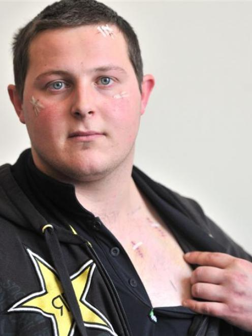 Brett Greenheld shows the wounds he received after being attacked and stabbed in Kaikorai Valley...