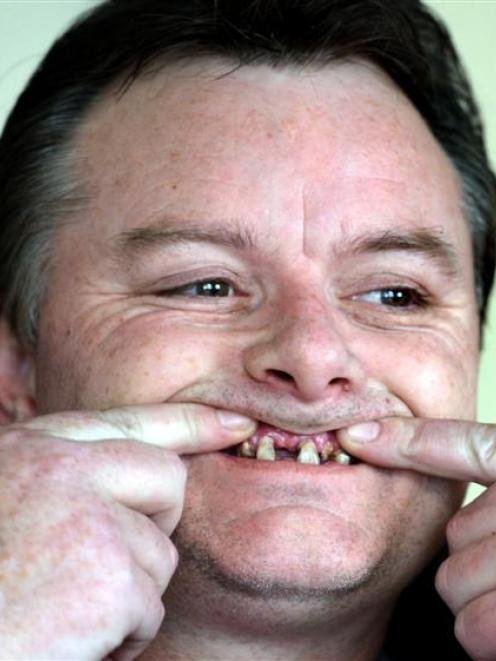 Invalid beneficiary Paul Whiteman wants Work and Income to stop his pain and lend him money to...