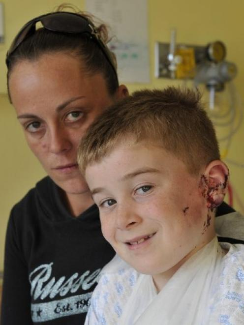 Jayden Taggart after the attack last year. Photo ODT files