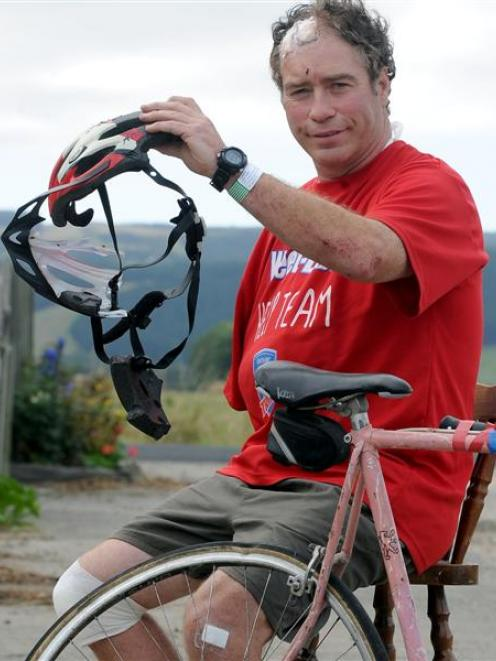 Outram cyclist John Nicholl with the remains of his bicycle and helmet yesterday after he was hit...