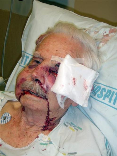 Pensioner Louis Watts, who was beaten up in his room at a Wiri retirement village in Auckland....
