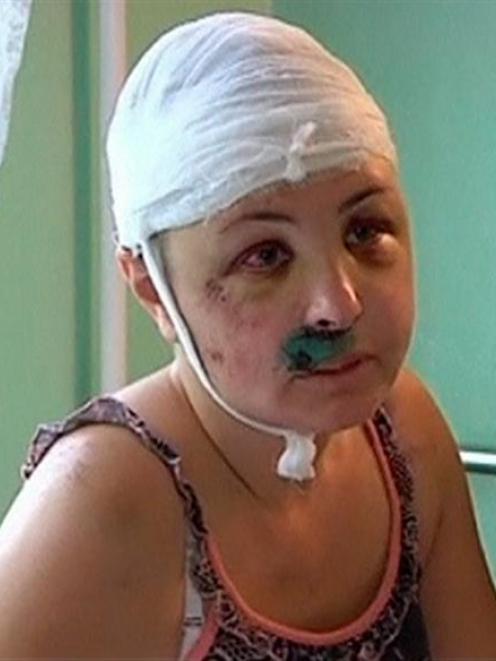 Rape victim Iryna Krashkova speaks during an interview from a hospital ward in Mykolaiv.  REUTERS...