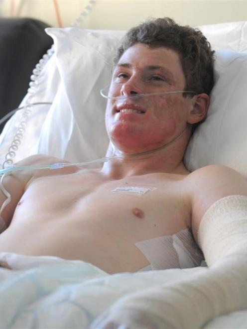Telford Rural Polytechnic student Matthew Scally (18) recovers in Dunedin Hospital after landing...