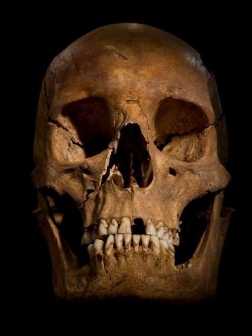 This skull, which archaeologists say belongs to Richard III, is part of a skeleton found under a...