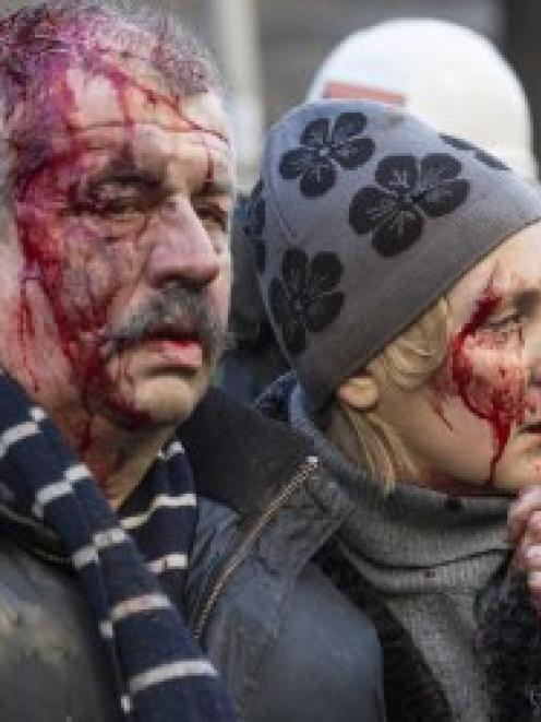 Wounded people are seen after clashes with riot police in central Kiev. REUTERS//Vlad Sodel