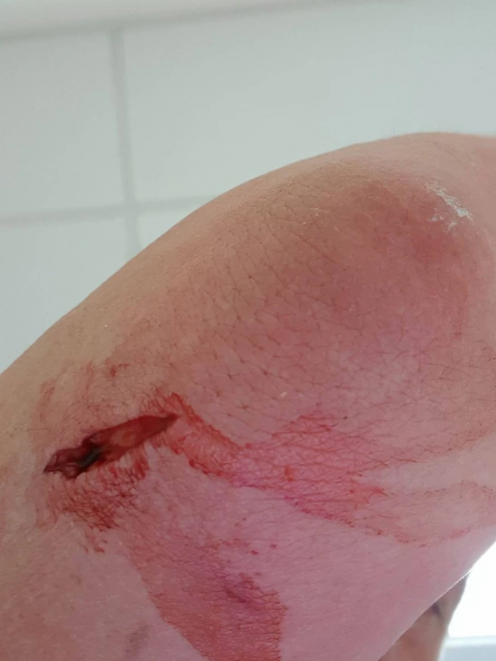 The deep puncture wound Dan Alders received from a stingray, which had to be stitched up. Photo:...