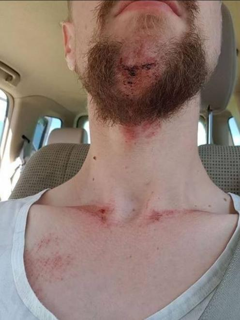 Liam Thompson's injuries.