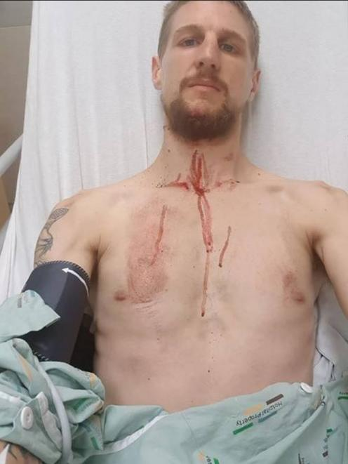 Liam Thomspon suffered a broken jaw and a raft of cuts and grazes. Photos: Supplied