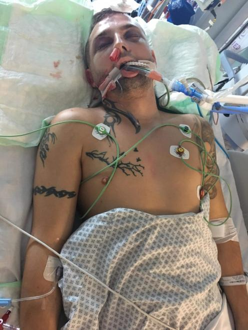 Rupert as he lay unconscious in hospital. Photo: Supplied