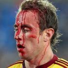 Highlanders halfback Jimmy Cowan leaves the field injured against the Crusaders. He later...